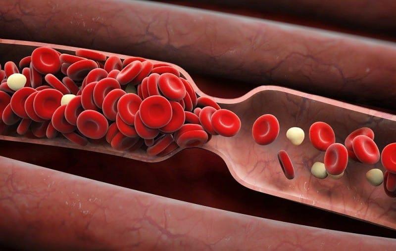 Menurunkan Risiko Penggumpalan Darah