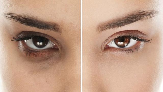 4.   Menghilangkan Kantung Mata