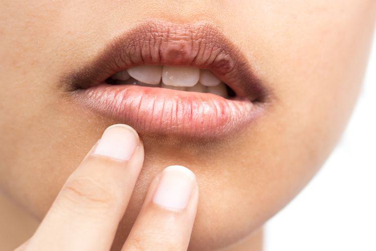 6.   Mengatasi Bibir Kering