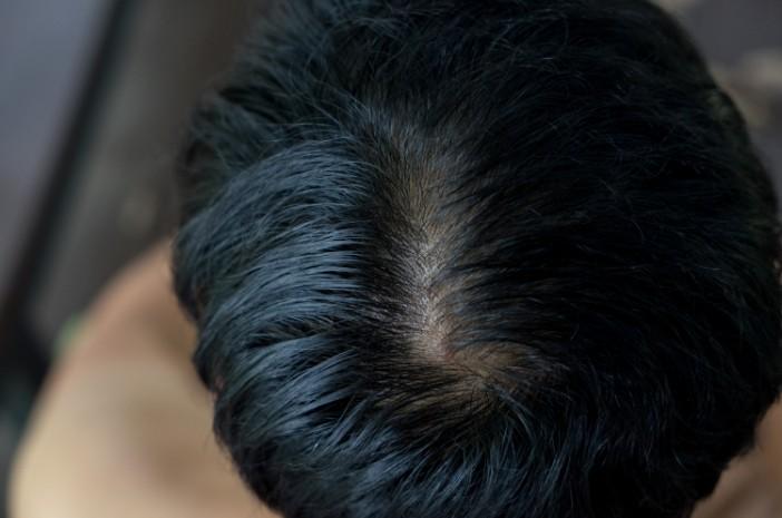 1. Menumbuhkan Rambut