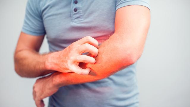 9. Mengurangi Gatal Karena Alergi